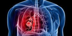 تغيرات بسيطة في أصابعك تشير لإصابتك بسرطان الرئة