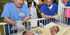 شاهد مراحل فصل التوأم السيامي الليبي أحمد ومحمد في ليبيا